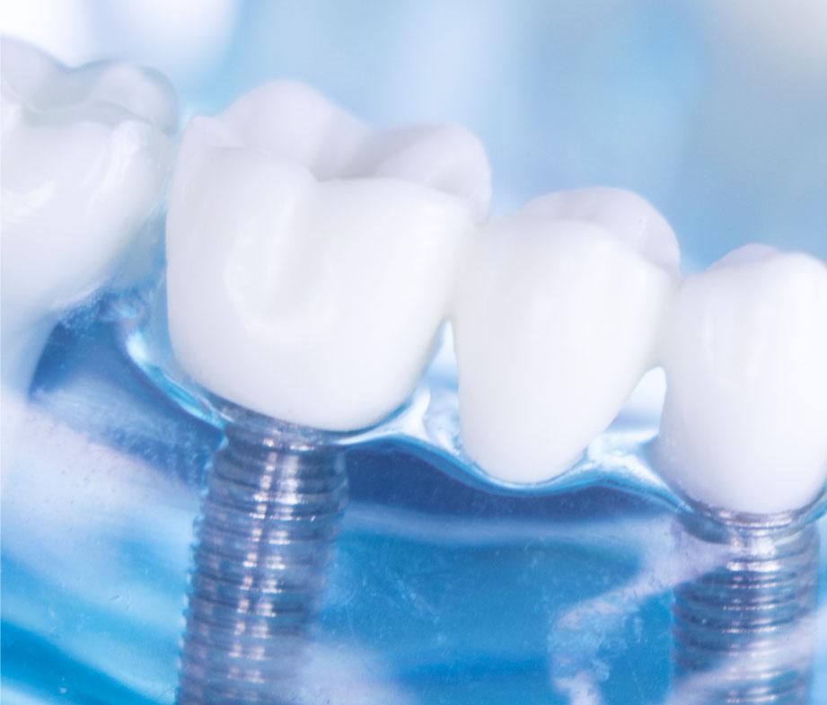2019-implantes-dentales-1